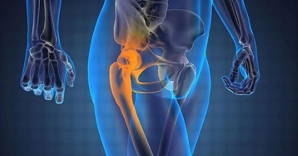 Лечение коксартроза тазобедренного сустава 2 степени без операции