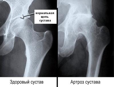 Коксартроз тазобедренного сустава 2 степени. Лечение народными средствами, препаратами, операция
