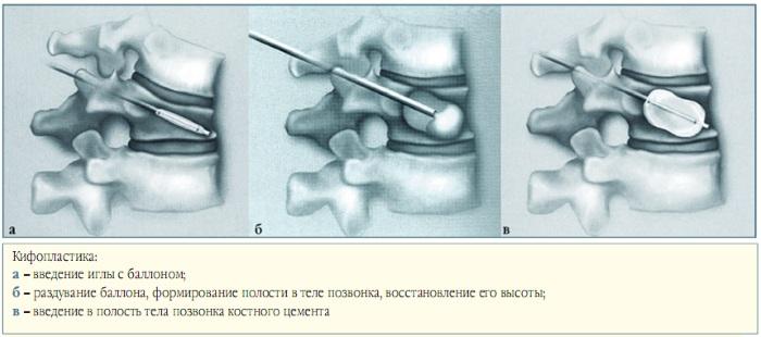 Компрессионный перелом позвоночника. Что это такое, лечение грудного, поясничного отдела, у пожилых людей, детей