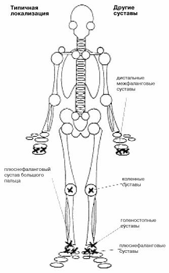 Лечение артрита сустава народными средствами thumbnail