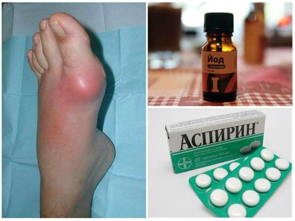 Лечение артрита на ногах, руках, голеностопа, коленного сустава народными средствами
