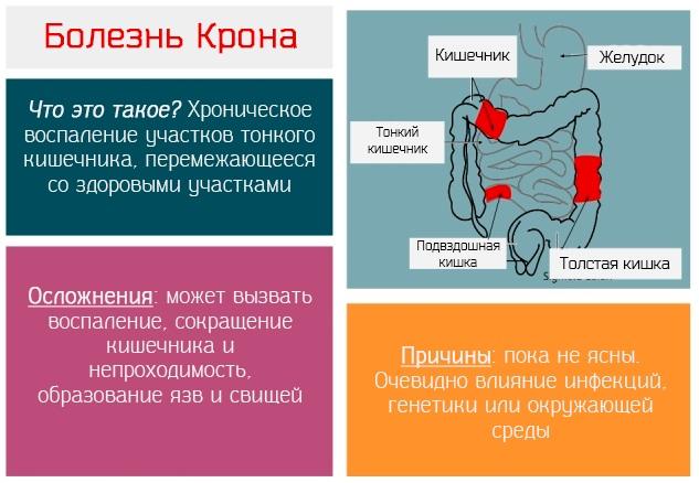 Стелара (Stelara). Инструкция по применению, цена в России, отзывы