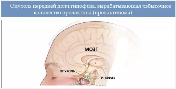 Микроаденома гипофиза. Симптомы у женщин, что это такое, лечение, прогноз, последствия