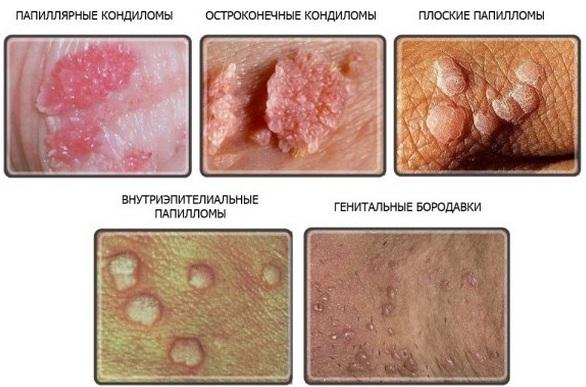 Папилломавирусная инфекция у женщин, мужчин. Лечение, симптомы, как передается, проявляется. Препараты