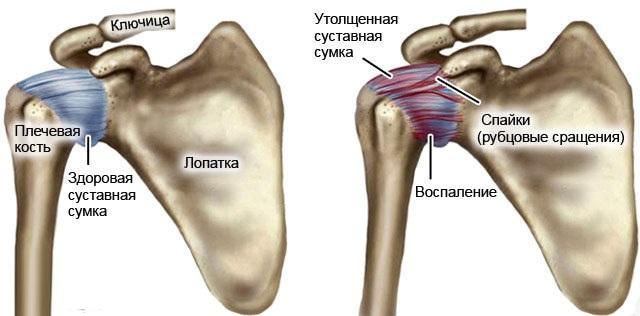 Периартрит плечевого сустава. Лечение, симптомы, гимнастика, таблетки