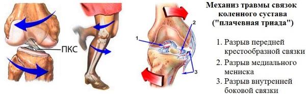 Разрыв связки коленного сустава. Симптомы, лечение, операция