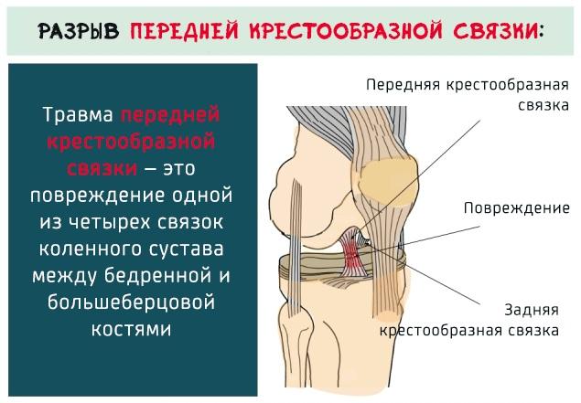 МРТ коленного сустава. Цена, что показывает, как проходит, противопоказания, показания, подготовка