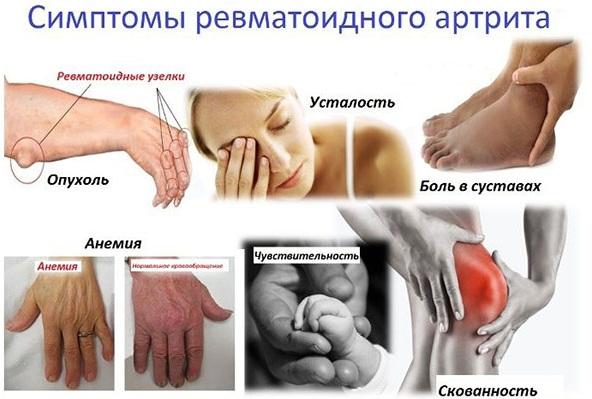 Ревматоидный артрит. Диагностика по крови, этиология, патогенез, причины, симптомы и лечение