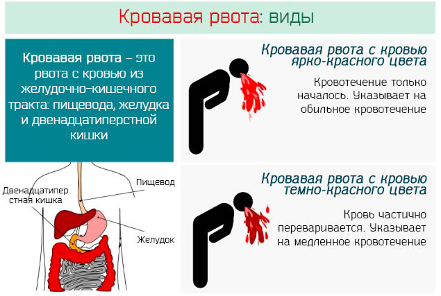 Геморрагическая лихорадка. Симптомы с почечным синдромом, что это такое, лечение