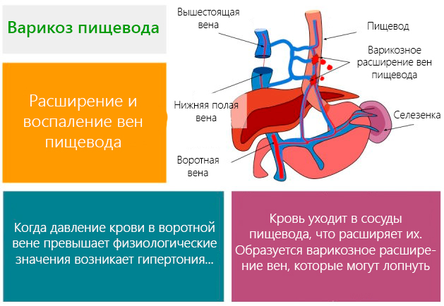 Рвота с кровью. Причины у взрослого, симптомы и лечение, что делать