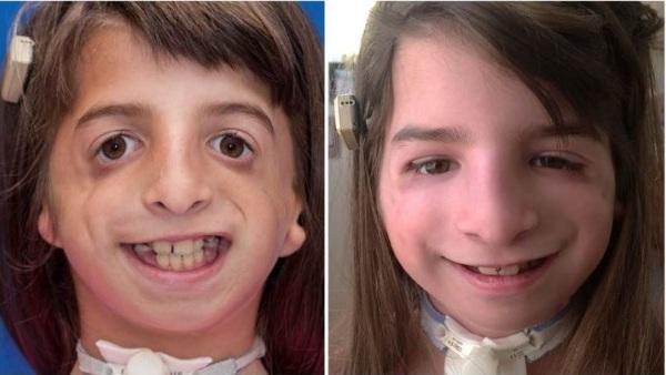 Синдром Тричера Коллинза. Фото до и после операции, причины, лечение