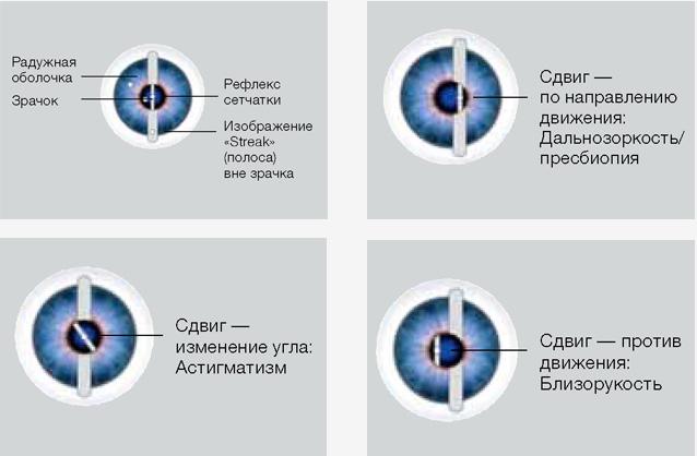 Сложный миопический астигматизм обоих глаз. Что это такое, лечение