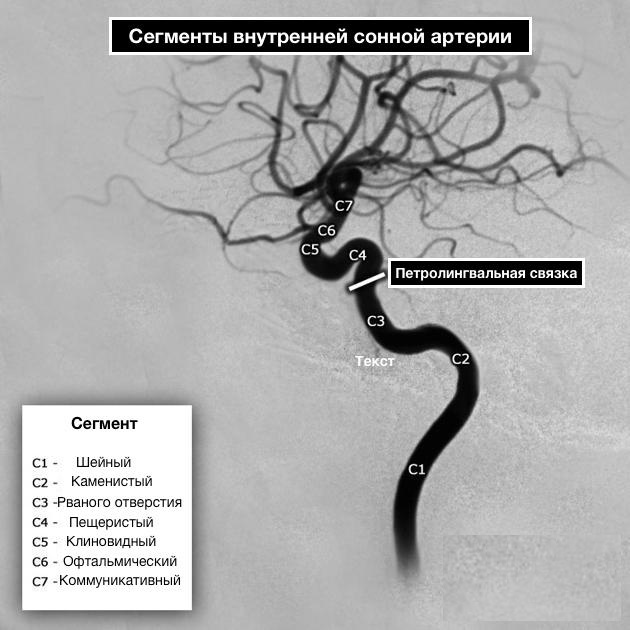Сонная артерия у человека. Где находится на шее, анатомия, симптомы болезней, закупорки