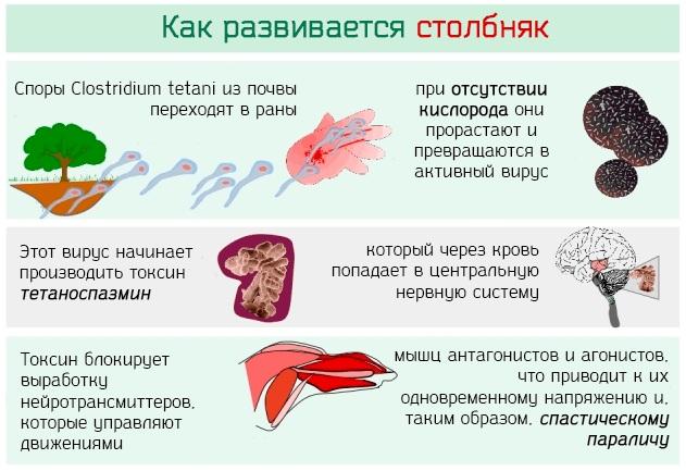 Столбняк. Симптомы у взрослых, возбудитель болезни, лечение, последствия