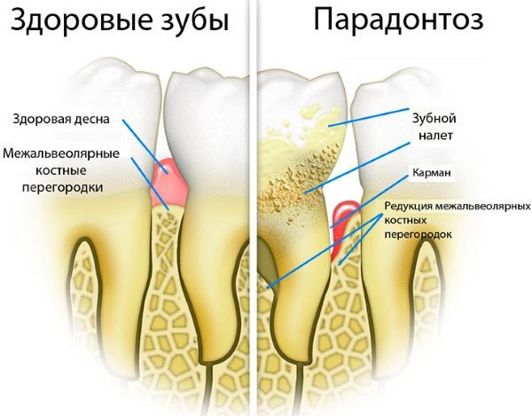 Аппарат Вектор для лечения пародонтита, десен, чистки зубов в стоматологии. Что это такое