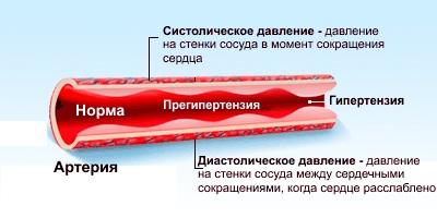 ВСД у женщин. Симптомы, как проявляется, признаки в стадии обострения, климакса, после родов. Лечение