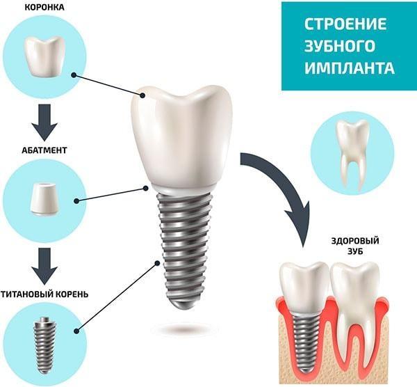 Как вставить имплант зуба. Виды, цена, больно ли, как это делается, отзывы