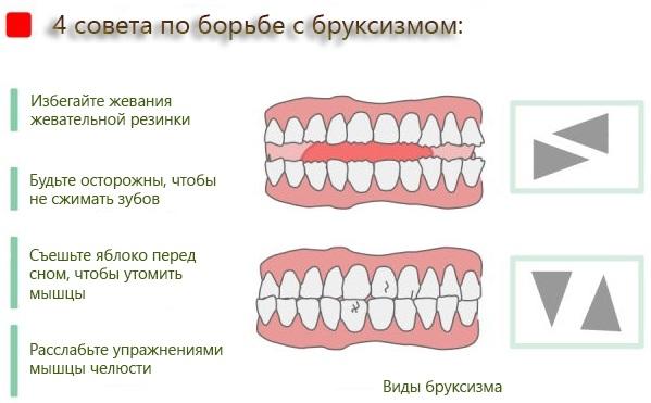 Хрустит, болит челюсть при открывании рта, жевании. Что делать, к какому врачу обратиться