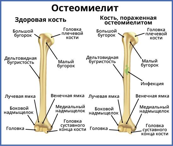 Гемофильная палочка. Что это такое в зеве, носу у ребенка, взрослых, симптомы, лечение