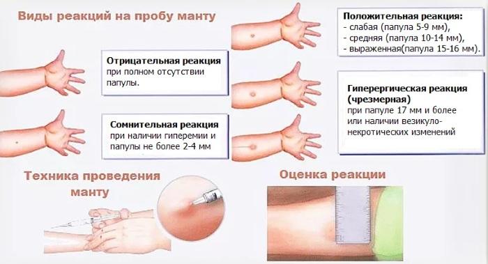 Аллергическая реакция замедленного типа. Типы, виды, стадии, лечение