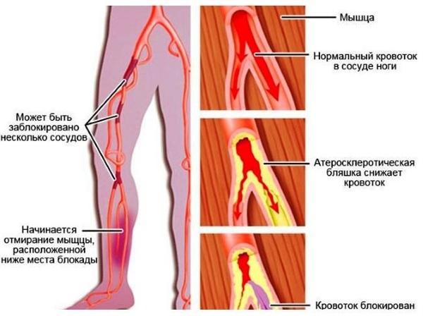 Атеросклероз сосудов нижних конечностей. Лечение народными средствами, препаратами, симптомы, диета