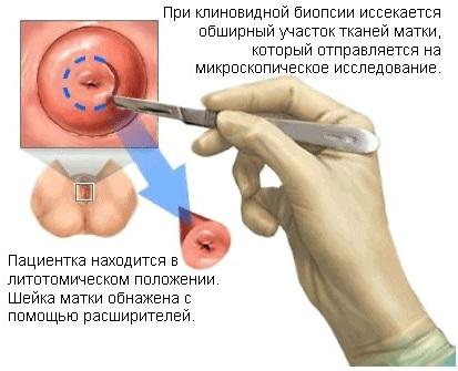 Биопсия шейки матки. Как делают, на какой день цикла, что нельзя после процедуры, расшифровка