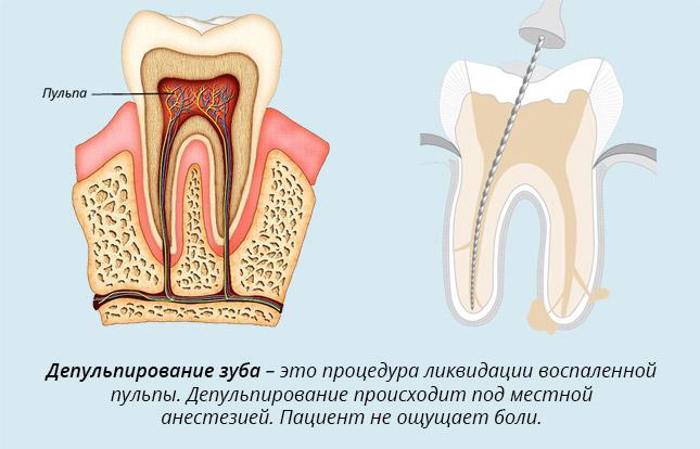 Депульпирование зуба. Что это такое, перед протезированием, как проводится, последствия, фото, цена