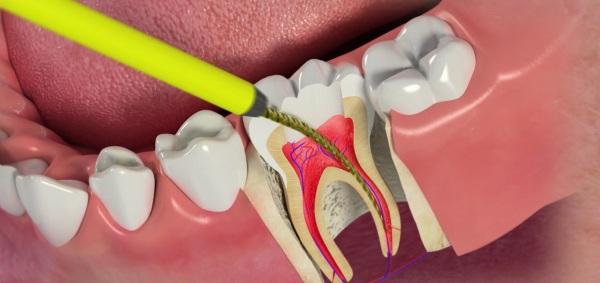 Что такое депульпация зуба перед протезированием