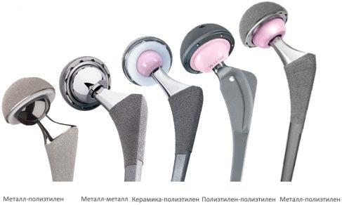 Эндопротез тазобедренного сустава. Цена, срок службы, фото, рентген
