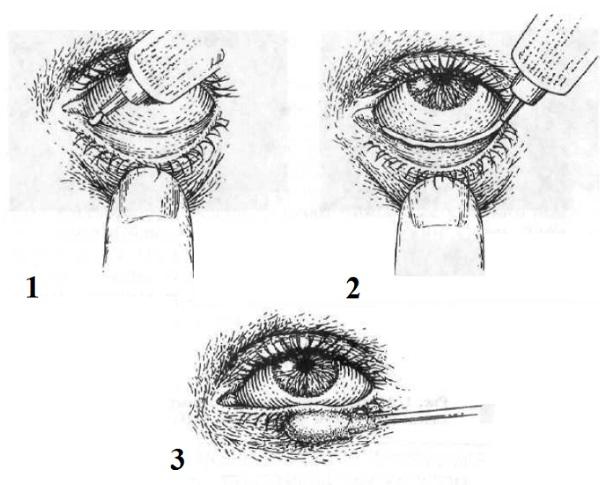 Глазная мазь от коньюктивита для детей, взрослым, беременным. Инструкции, цены