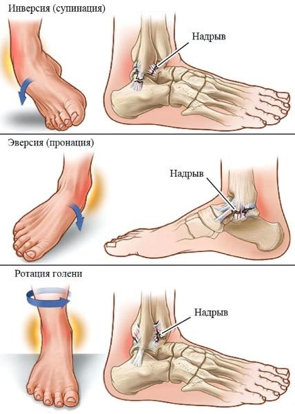 Голеностопный сустав опухает и болит после травмы, бега. Причины, лечение