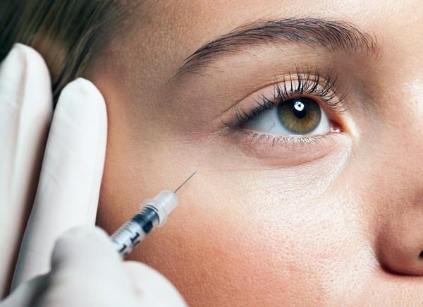 Грыжа под глазами. Причины и лечение у женщин. Фото, как избавиться без операции народными средствами, убрать операцией