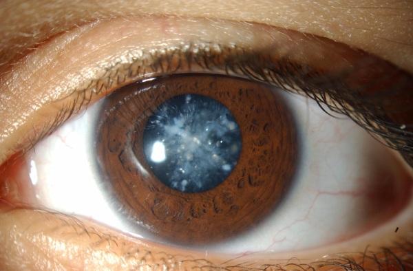 Калия йодид (йодистый) капли глазные. Инструкция по применению, цена, аналоги