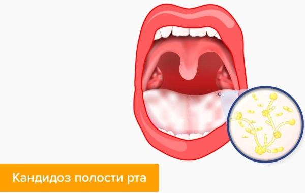 Кандид (Candid) раствор для полости рта. Цена, инструкция, аналоги для детей, взрослых
