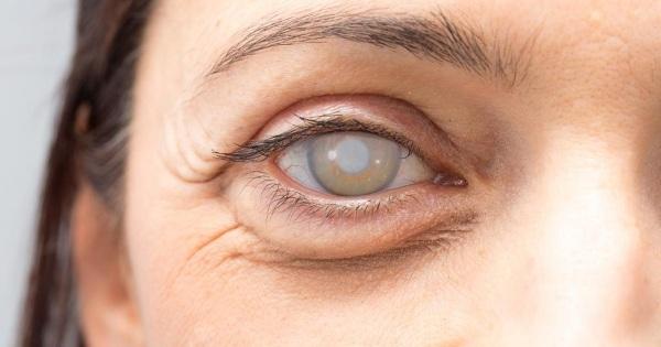 Какие капли от катаракты самые эффективные