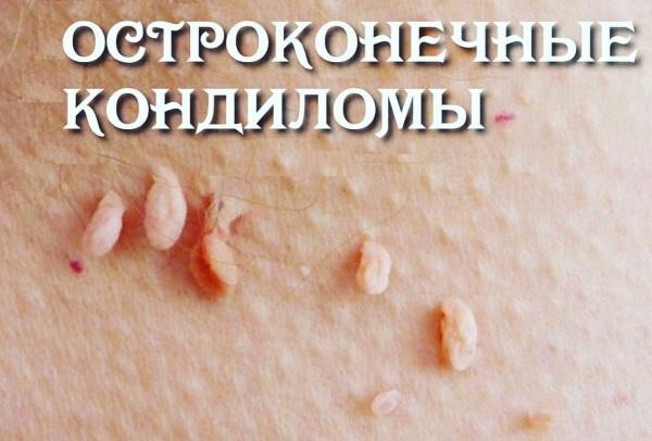 Кондиломатоз у женщин. Фото, причины, лечение у беременных, передаётся ли мужчинам, удаление
