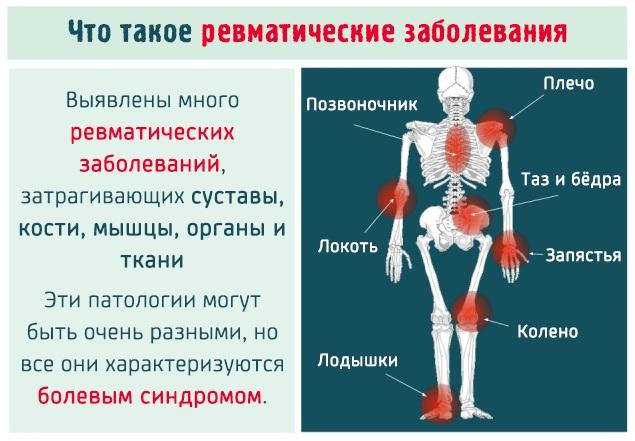 Миалгия. Симптомы и лечение, что это, причины возникновения