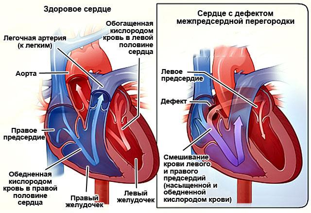 Нарушение внутрижелудочковой проводимости на ЭКГ у ребенка, подростка, взрослых. Что это значит