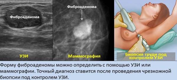 Уплотнения в грудных железах у женщин. Что это может быть перед месячными, беременности, что делать