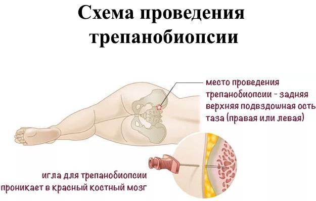 Ортопед-травматолог. Что лечит, чем занимается детский, взрослый