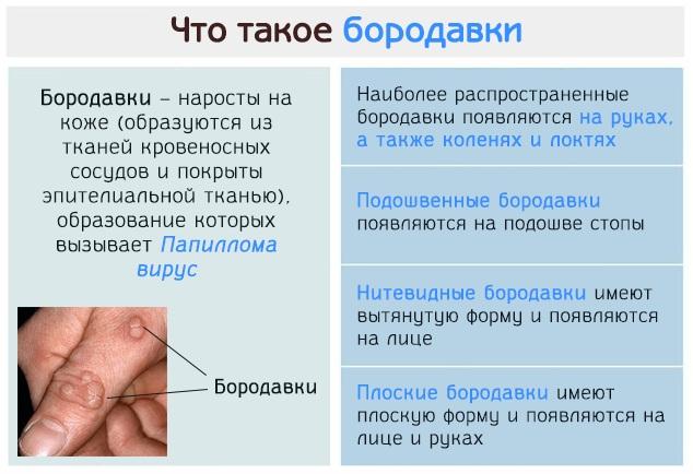 Как отличить родинку от папилломы, бородавки. Фото и описание