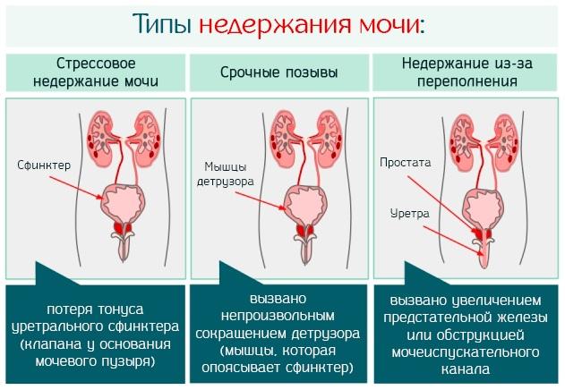 При чихании выделяется моча. Что делать, причины, лечение у женщин, мужчин, к какому врачу обратиться