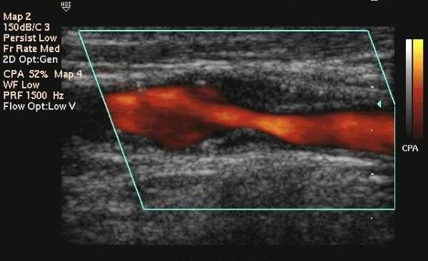 Ригидность затылочных мышц. Что это, как определить у детей, взрослых, причины, лечение