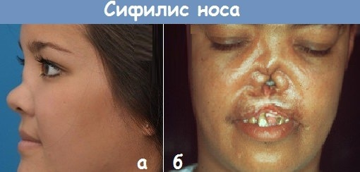 Сифилитическая инфекция. Симптомы у женщин, пути передачи, лечение
