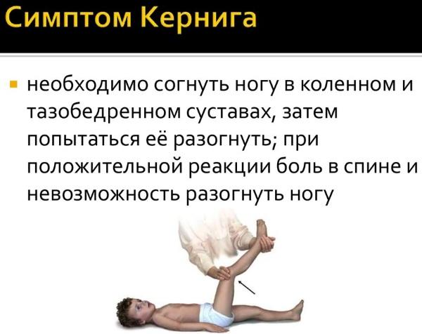 Симптом Кернига и Брудзинского при менингите, ОНМК, паркинсоне, инсульте. Что это такое, как проверить