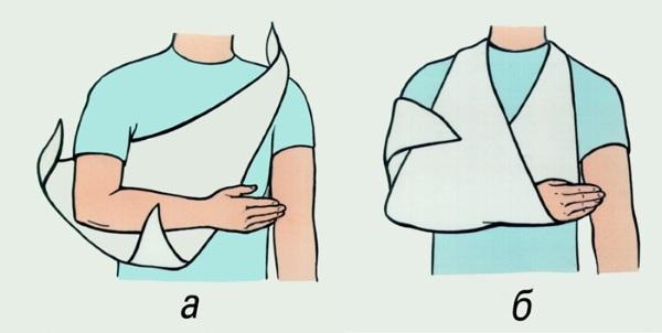 Тендиноз сухожилия надостной мышцы плечевого сустава, подлопаточной мышцы. Что это такое, лечение