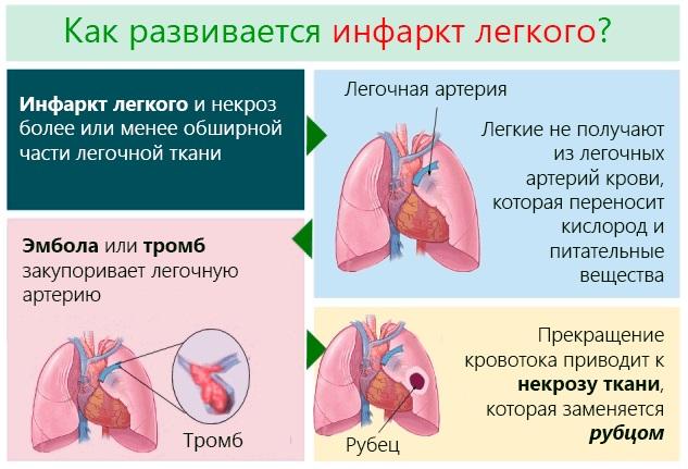 Тромбоэмболия. Симптомы и признаки, прогноз для жизни, диагностика, лечение, профилактика
