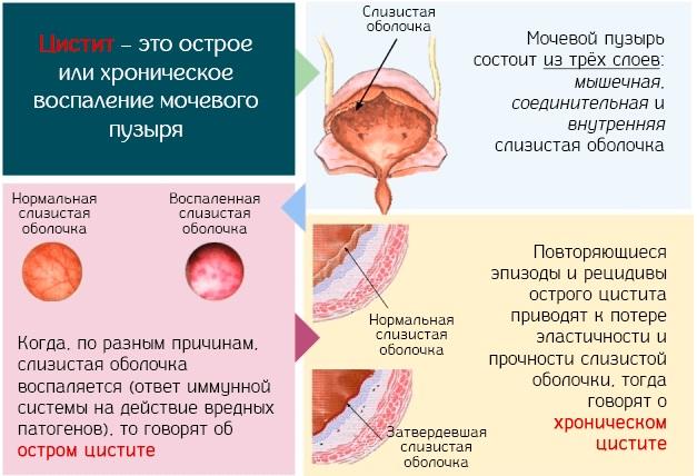 Лейкоцитарная эстераза в моче. Что это значит, норма