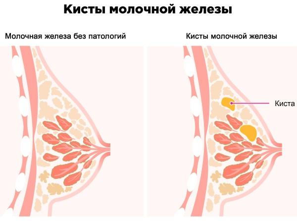 Болит грудь перед месячными, сильно набухает. Почему, что делать