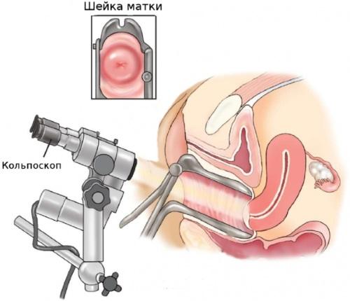 Плацентарный полип. Что это такое, анатомия, лечение после родов, медаборта, чистки замершей беременности, выкидыша